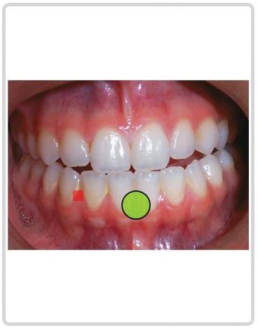 Dental Care Decisions Hot Spot Exercises